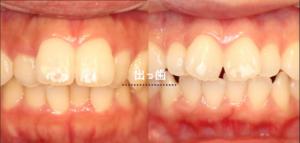 軽度な出っ歯