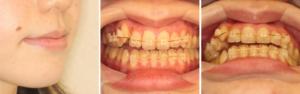 八重歯治療中の写真