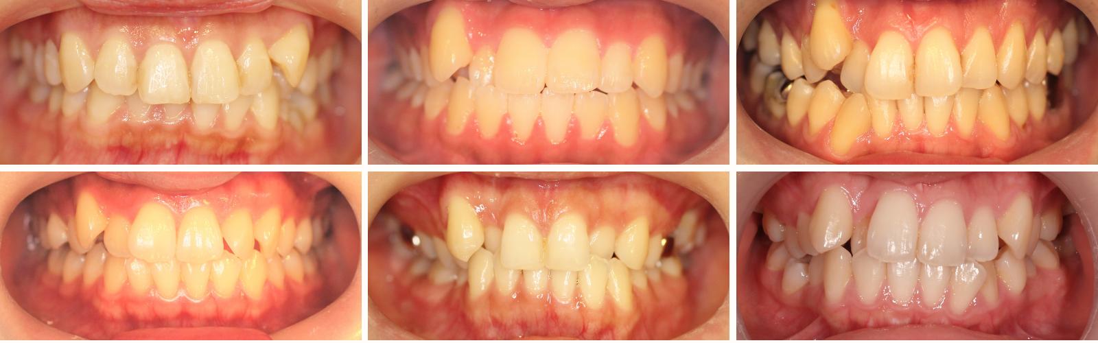 八重歯の写真
