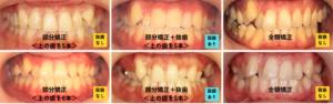 八重歯治療の選択肢