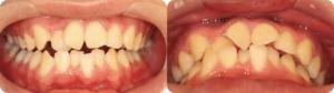 上の前歯が羽のように傾いてしまうケースです。上下の前歯がクロスしてしまっている箇所もあります