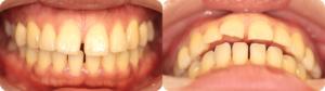 上下の前歯が出っ歯のように前に傾き、すきっ歯になってしまった